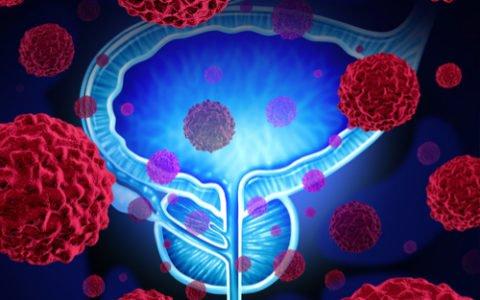 Rak prostaty – można go uniknąć